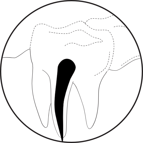 "<img src="" Illustration-Activating-Irrigation-1.png"" alt=""Root canals previously cleaned"">"