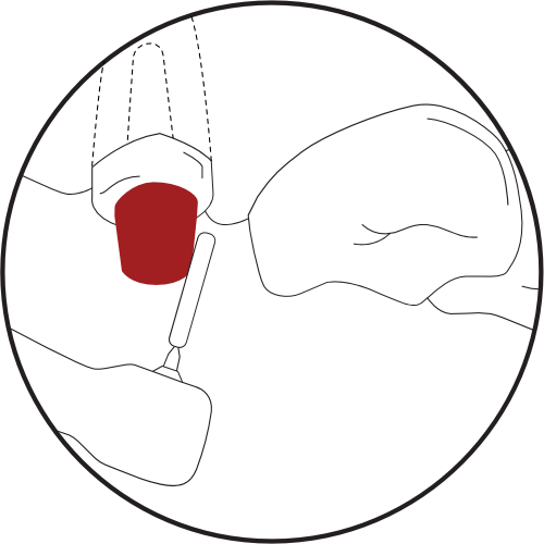 """<img src=""""Illustration-Removing-Cast-Posts-1.png"""" alt=""""reducing the coronal portion."""">"""