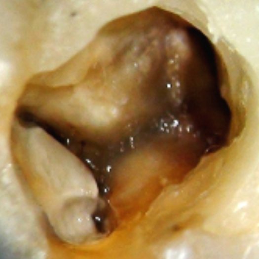 "<img src=""Images-Locating-Middle-Mesial-Canals-1.jpg"" alt= Groove created to connect the mesiobuccal and mesiolingual canals."">"