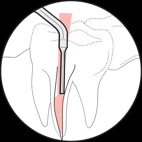 "<img src"" Illustration-Thermoplasticizing-Gutta-Percha-3.png"" alt="" Step 3 of Obturating with Gutta-Percha"">"